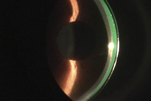 lentes-esclerales-optica-signes